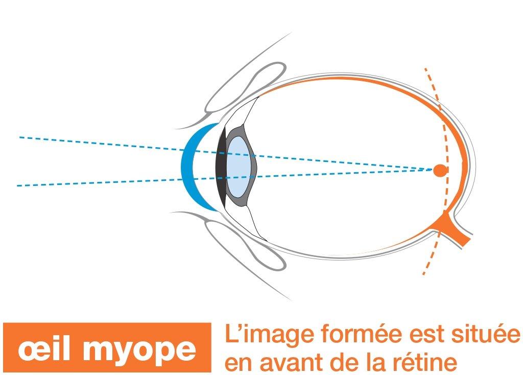 Myopie - Schéma oeil myope